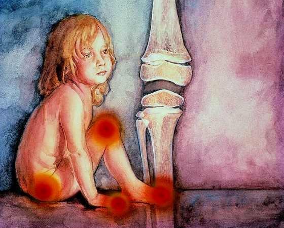 Resultado de imagen de artritis juvenil