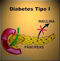 Ilustração estilizando o fato de o pâncreas não produzir insulina ou produzi-la com insuficiência no diabetes do tipo I