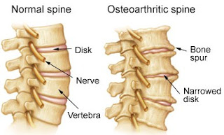 Best cervical spine treatment in nagpur