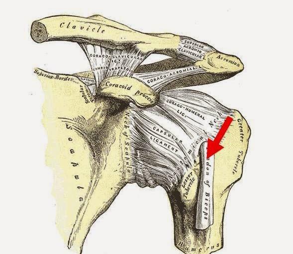 Infiltración de la corredera bicipital