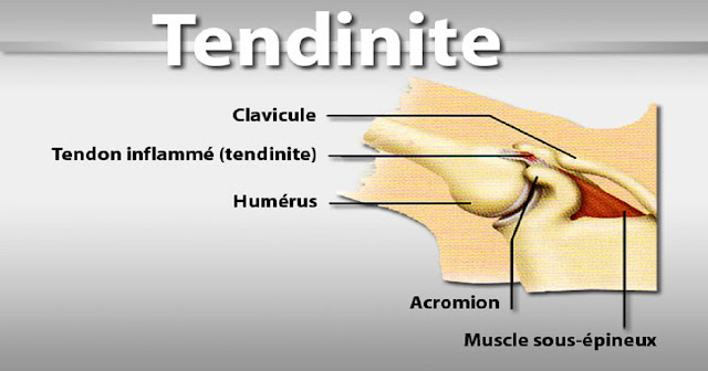 soulager-tendinite-cause-symptome