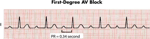 First degree atrioventricular block - ECG