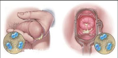 Penyakit Kencing Nanah Pria Dan Wanita