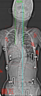 脊椎側彎, 脊椎側彎矯正, 脊椎側彎治療, 脊椎側彎矯正運動, 脊椎側彎矯正成功案例, 脊椎側彎 瑜珈