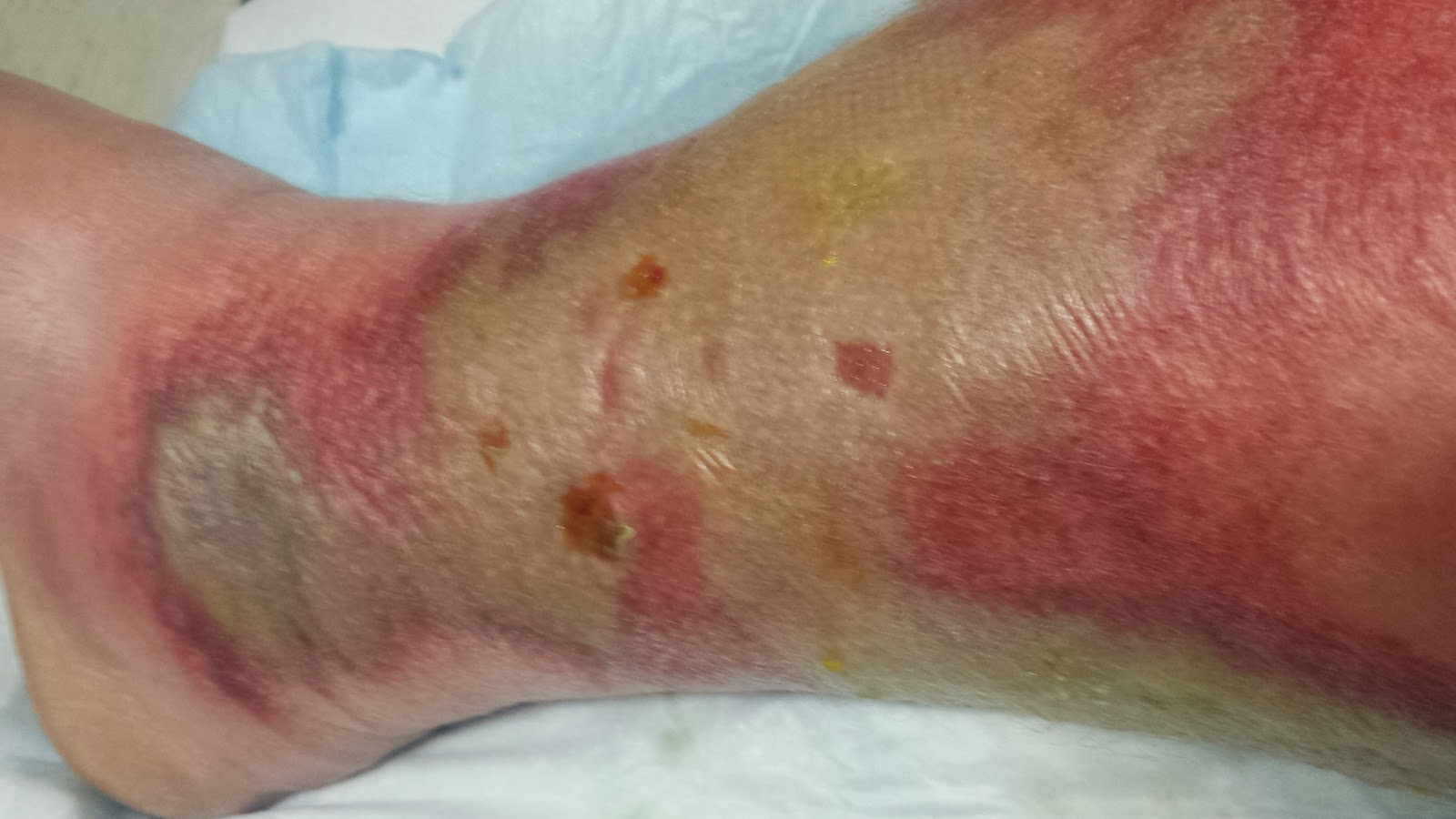 BubbaMike's Ramblings: Cellulitis (warning, graphic photos in this ...