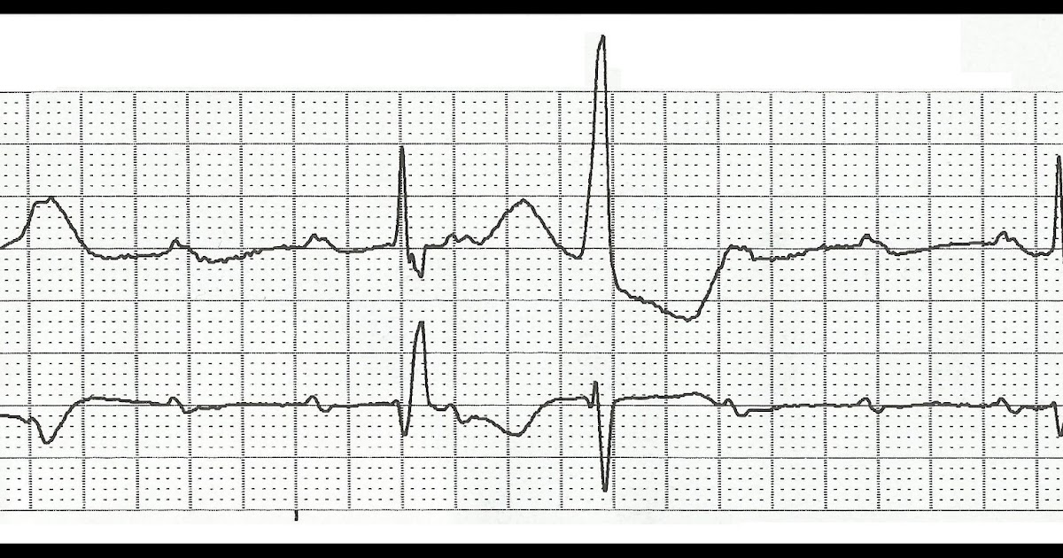 Float Nurse: Practice EKG Rhythm Strips 176