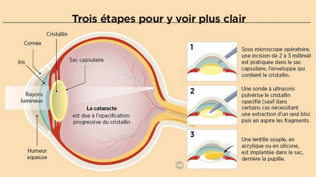 Cataracte opacification du cristallin, causes, symptômes