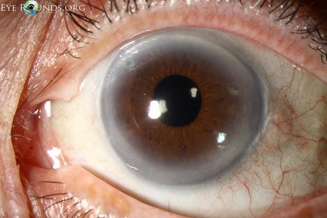 arcus senilis, pinguecula, pseudophakia in eyes