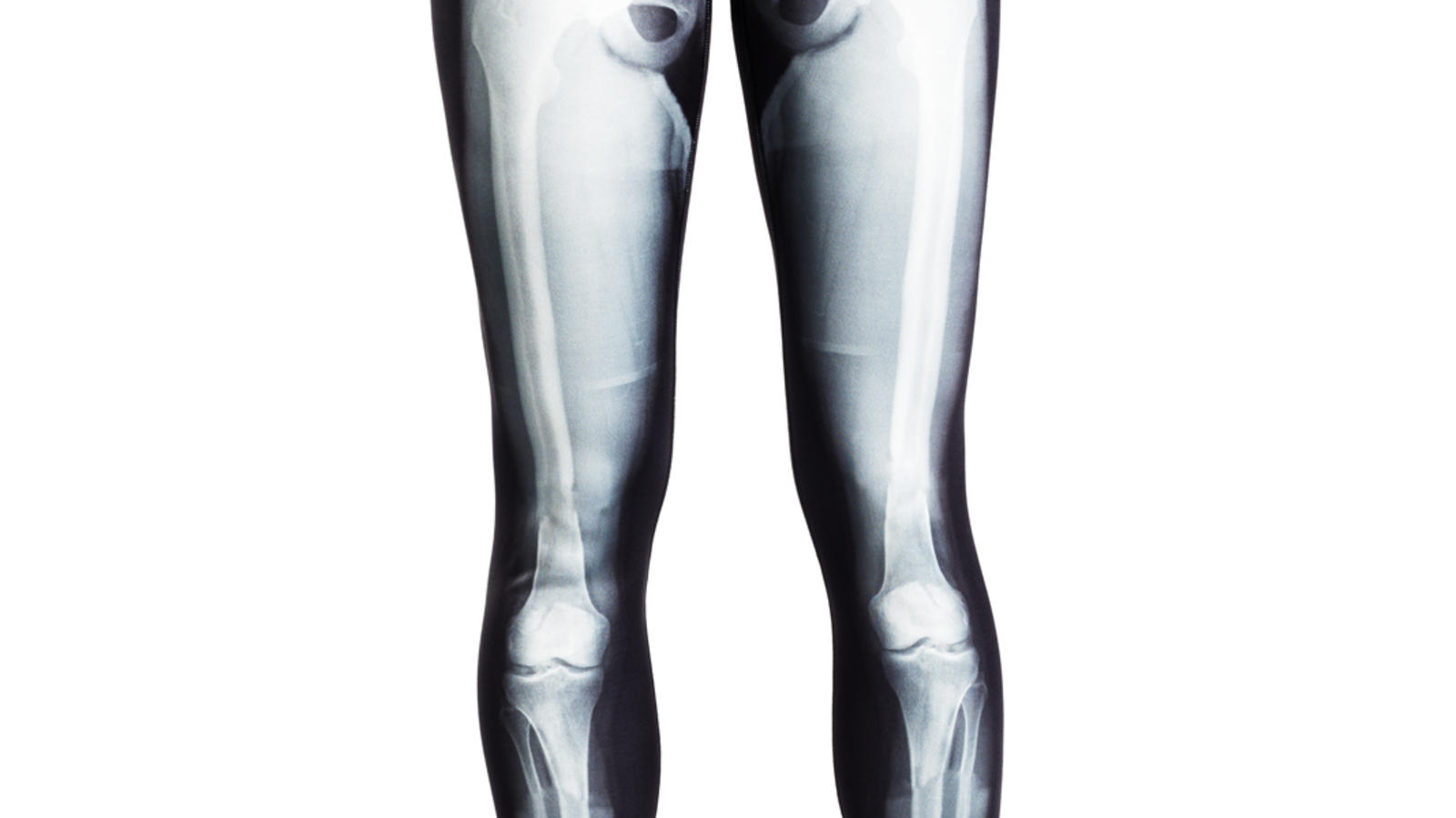 21ac370527ee6 WANT: Nike Pro Ltd. Edition X-Ray Skeleton Tights. - ThatIndieRunner