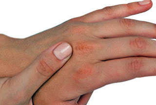 pareri tratamente hidratarea mainilor
