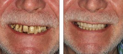 Gigi buruk kembali putih dan bersih