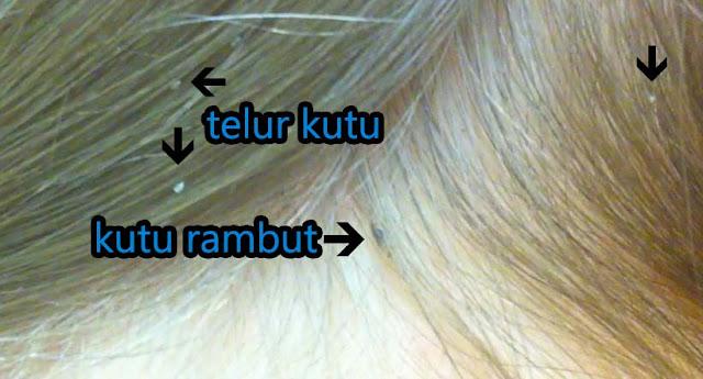 Cara Menghilangkan Kutu Rambut dan Telurnya dalam 1 Hari