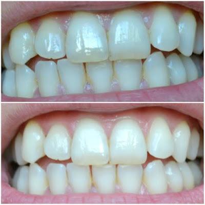 resultados del antes y después del blanqueamiento dental