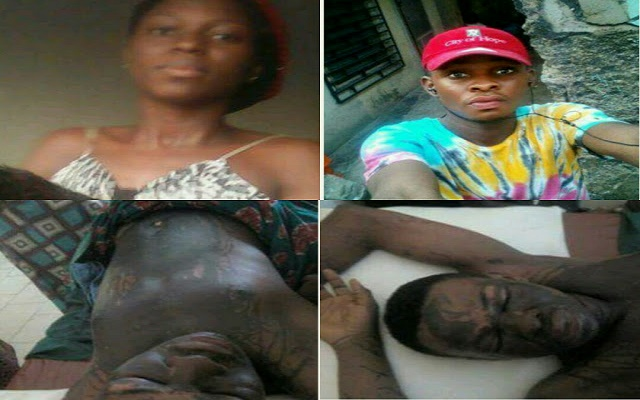 Man whose girlfriend bathes with acid, says he's forgiven her