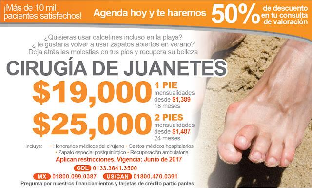 Paquete y precio de cirugía de correccion de juanetes minima invasiva en Salutaris Guadalajara