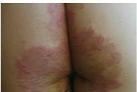Muncul bintik merah terasa gatal di bagian bokong