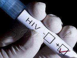 nigerians hiv positive 2011