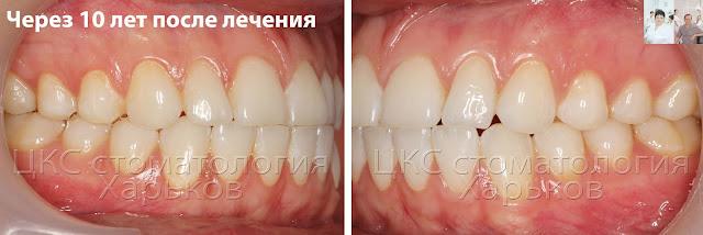 Прикус через 10 лет после ортодонтического лечения