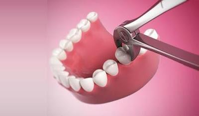 Nên nhổ răng thừa mọc ngầm hay không?