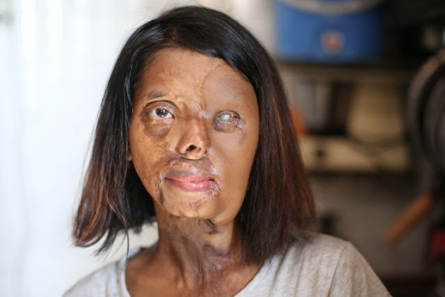 shabbo sheikh acid attack survivor
