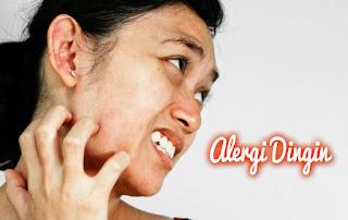 Obat Gatal Alergi Bentol Kulit Alergi Udara Dingin