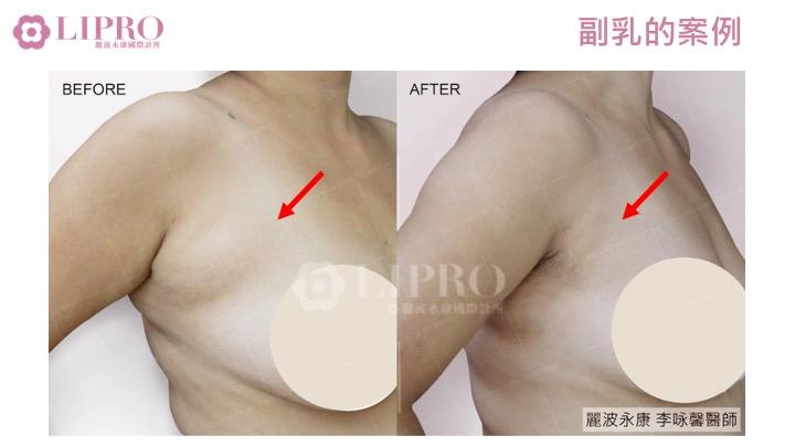 副乳的案例