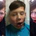 Remaja dibuli sampai patah rahang & bengkak bibir