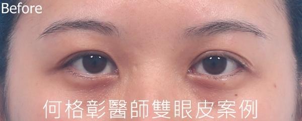訂書針微開放式雙眼皮術前