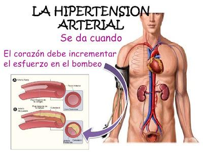 ¿Tienes hipertensión arterial?