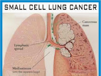 Lung Cancer Survival Rate - Stage 1 Lung Cancer