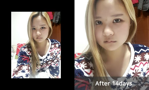 짱이뻐! - Never Regret Doing Korean Two Jaw Surgery