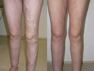 tratamentul venelor varicoase domodedovo