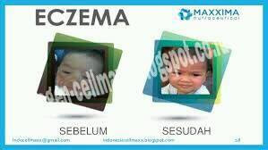 CellMaxx Obat herbal Eczema/Eksim