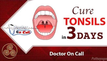 Quick Home Remedies for Tonsillitis in 3 Days | Doctor On Call