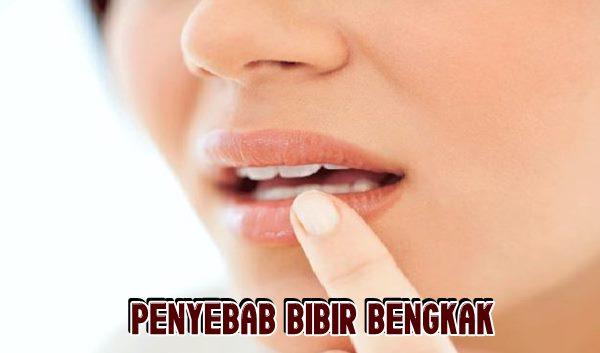 Alasan Bibir Bengkak Secara Tiba - Tiba