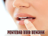 6 Alasan Bibir Bengkak Secara Tiba - Tiba yang Mesti Kamu Ketahui
