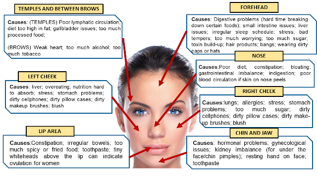 pimple, acne chart