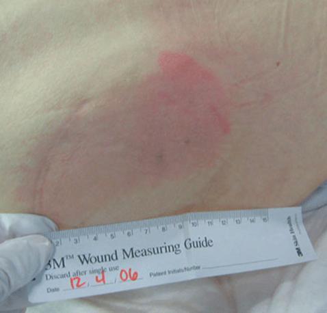 傷口大師: 壓瘡定性評估方法。NPUAP 2007年版壓瘡分期