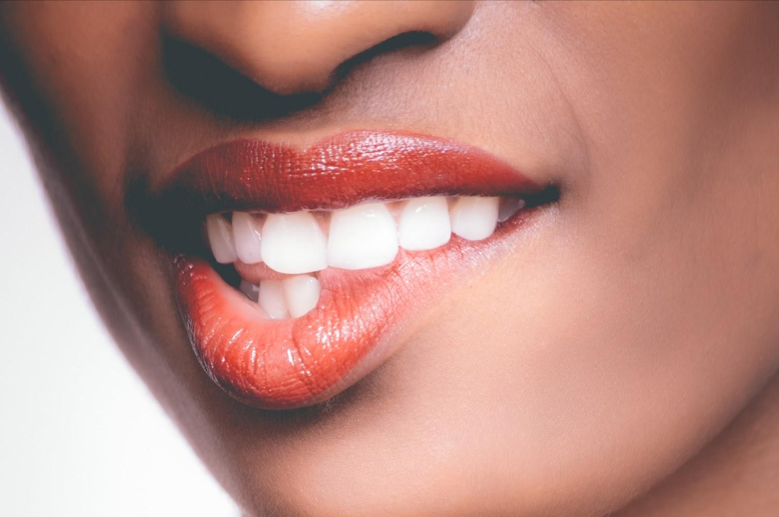 التهاب اللثة،الفم، اسنان،