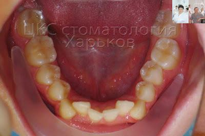 неровные зубы нижней челюсти