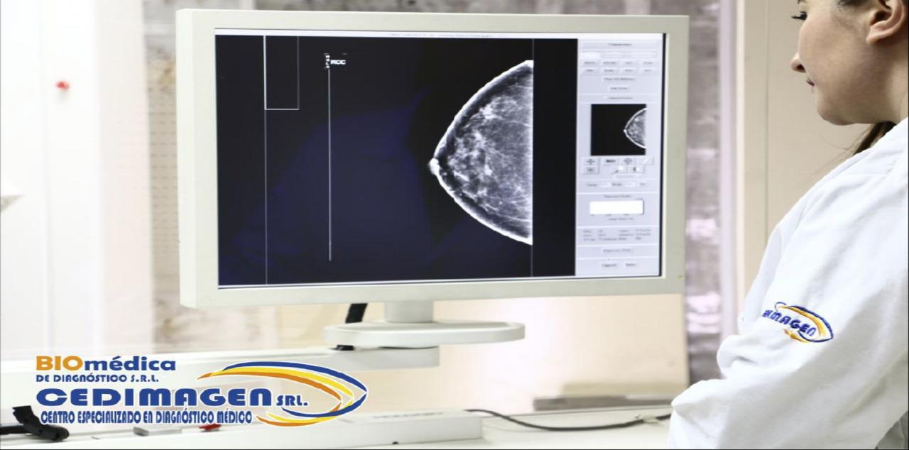 Dra. Yancarla Conde recomienda hacerse una mamografía cada año y un examen cada mes