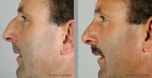 savoir tous sur la Correction du nez : la rhinoplastie
