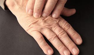 Que Sirve Para La Artritis