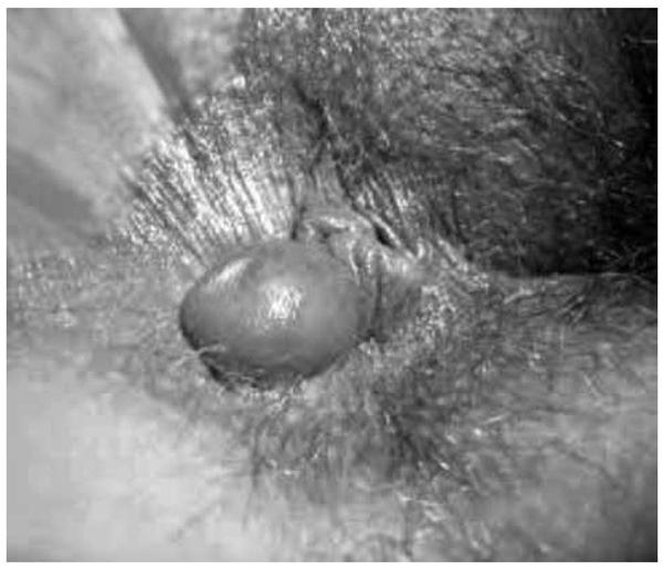 Ao exame físico da região anal, identificou-se lesão não dolorosa à palpação, mostrada na imagem a seguir