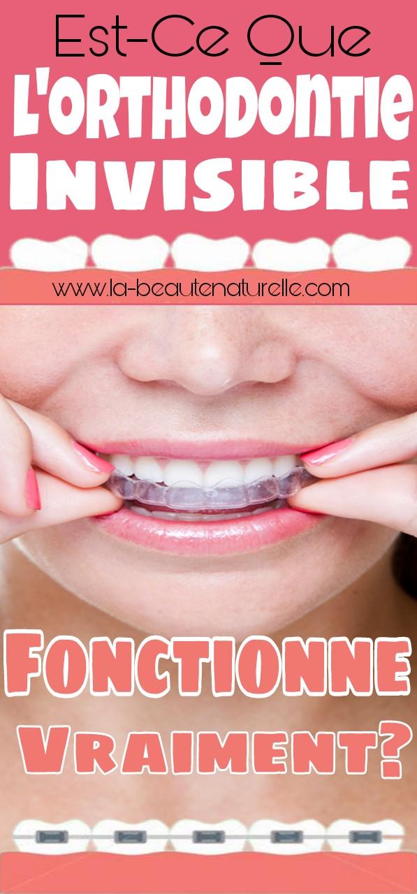 Est-ce que l'orthodontie invisible fonctionne vraiment?