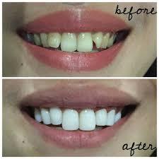 Veneer Gigi Memang Bisa Membuat Terlihat Lebih Cantik Tapi ini Bahayanya