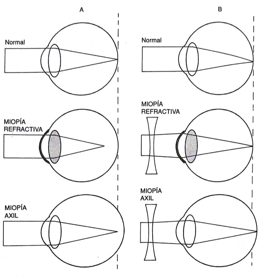 38fd1afb98 ... de la capacidad de refracción de los medios (miopía refractiva) o, con  mayor frecuencia, a un aumento del eje anteroposterior del ojo (miopía  axial), ...