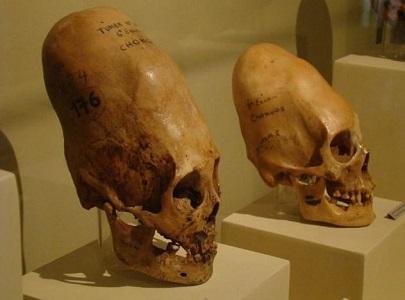 Paracas Kafatasları Hakkında Bilgi