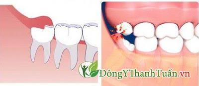 Cách chữa viêm lợi trùm cực an toàn hiệu quả răng khôn mọc thẳng hàng