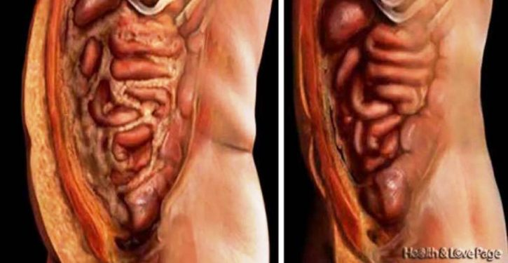 Get Rid Of All The Fat Deposits And Parasites Of Your Body Effortlessly